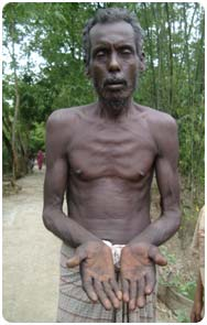 Village man showing signs of arsenic poisoning